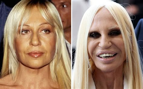 24 Horribly Aged Celebrities - Page 22 of 24 - CelebsDaily