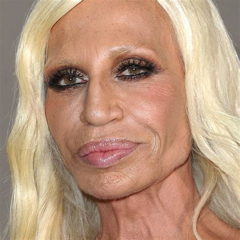 Is Donatella Versace the Biggest Celebrity Cosmetic